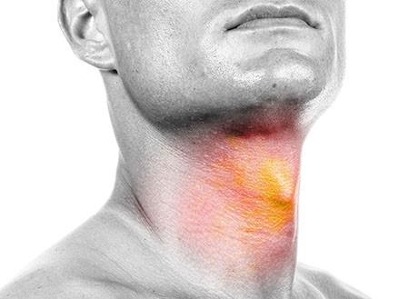 Head Neck Cancer Treatment Specialists Ent Head Neck Centre